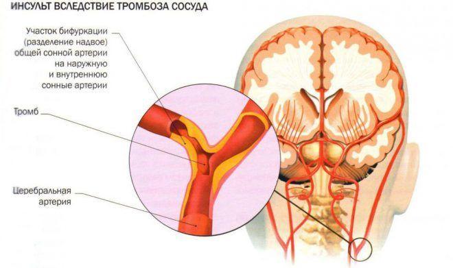 užkirsti kelią širdies priepuoliams ir insulto kasdienei sveikatai)