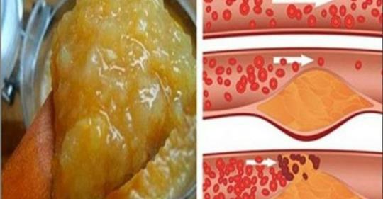 hipertenzijos iš tinktūrų receptas)