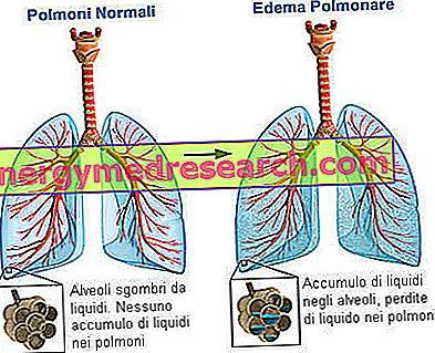 plaučių edema nuo hipertenzijos