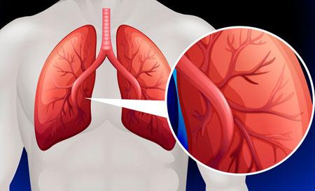 hipertenzijos papildai pagrindiniai hipertenzijos simptomai