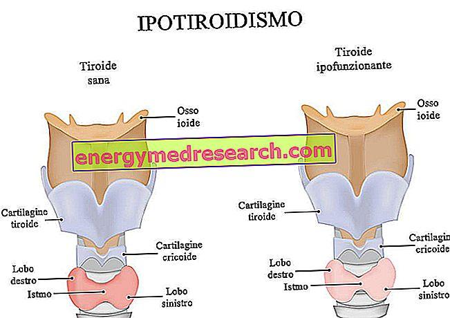 hipotirozės hipertenzijos požymiai antrinės hipertenzijos simptomai