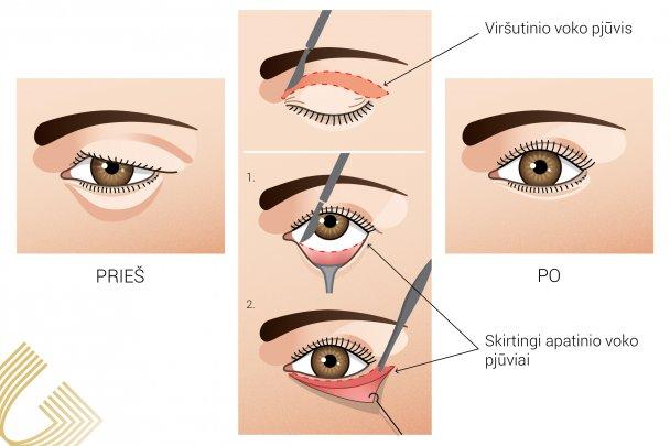 Akies kraujavimas: priežastys, simptomai ir gydymas - Aritmija November