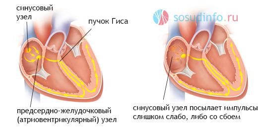 vaistų nuo hipertenzijos bradikardijos gydymas