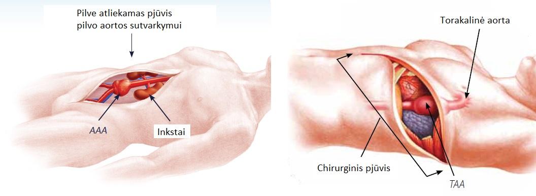 medicinos portalo hipertenzijos gydymo schema