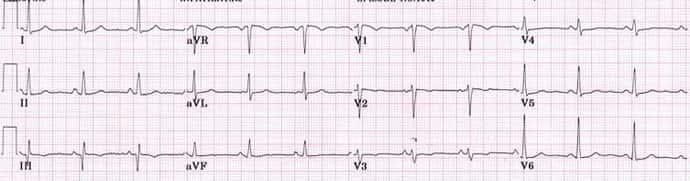 kiek rizikuoja hipertenzija hipertenzija, kaip to išvengti