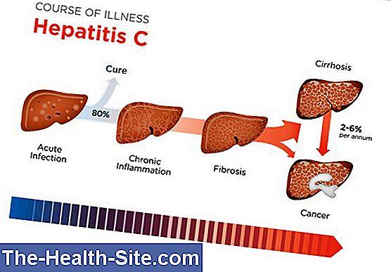 hipertenzija hepatitas C