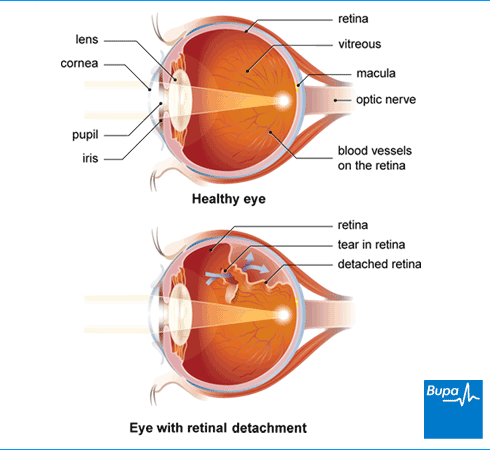 Akių kraujavimas