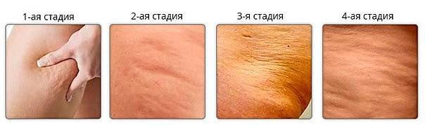 sergant hipertenzija, ar galima daryti masažą