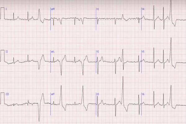 """Elektrokardiogramos """"skaitymas"""": kokios ligos joje užkoduotos?"""