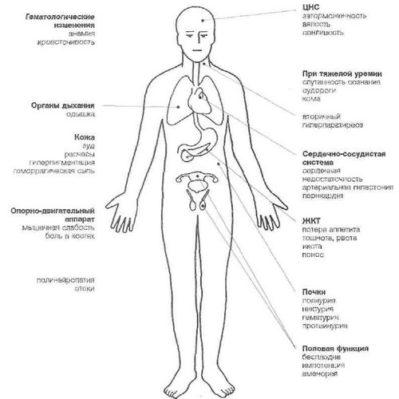 hipertenzija ir sustanonas hipertenzija, kaip numalšinti galvos skausmą