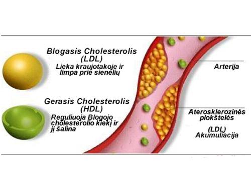 Padidėjęs cholesterolis? Ir cukrus? Planas, padėsiantis išsaugoti sveiką širdį! | vanagaite.lt