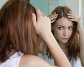 Kada plaukų slinkimas – jau liga, kurią būtina gydyti?