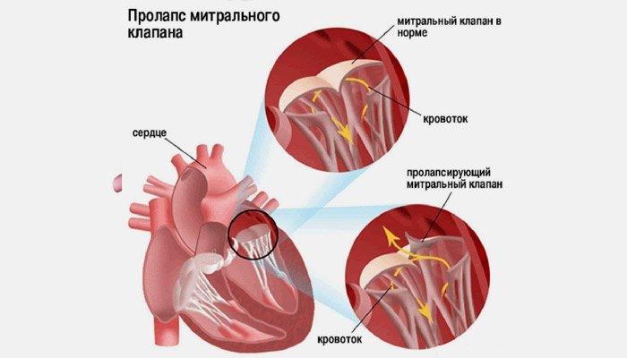 kurpatovas apie hipertenziją CHS su hipertenzija