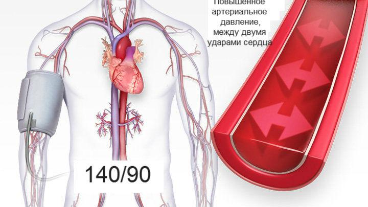 Aš sugebėjau įveikti hipertenziją)