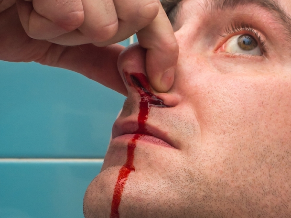 nosies kraujavimo priežastys esant hipertenzijai)