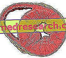 hipertenzijos priežastys, simptomai ir gydymas)