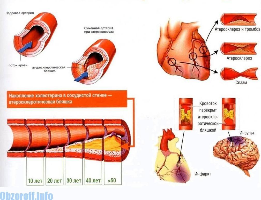 netiesa hipertenzija)