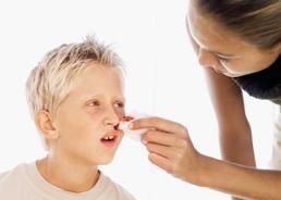 Kraujavimas iš nosies – ką būtina žinoti? – vanagaite.lt