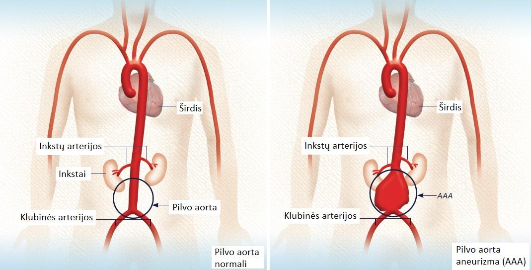 Inkstų arterijos stenozė | vanagaite.lt