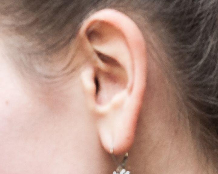 Pulsacija ausyse - priežastys ir gydymas - Tromboflebitas - November
