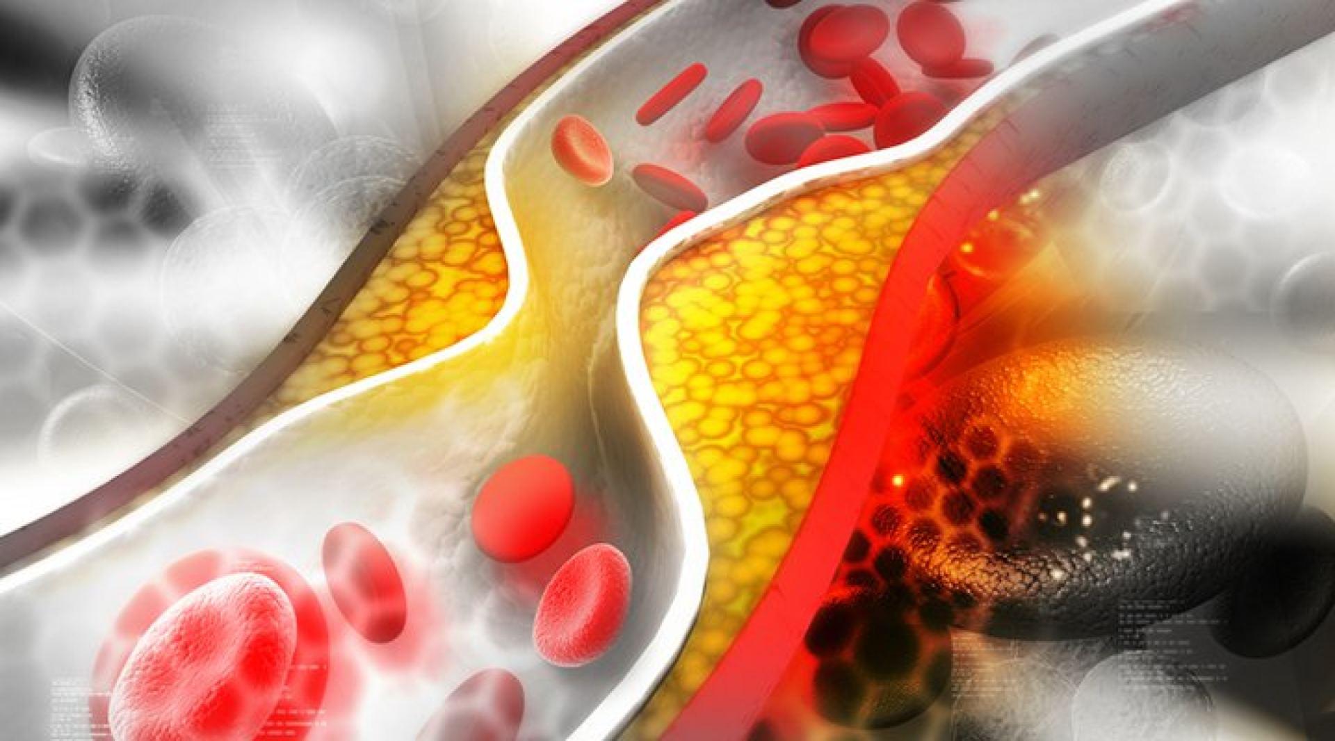 išeminė širdies liga ir hipertenzija