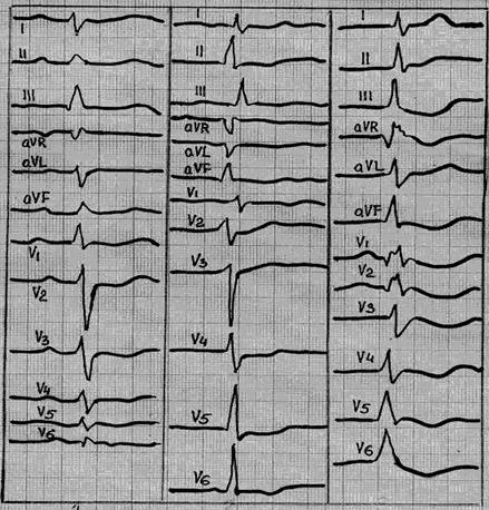 Elektrokardiografija (EKG)