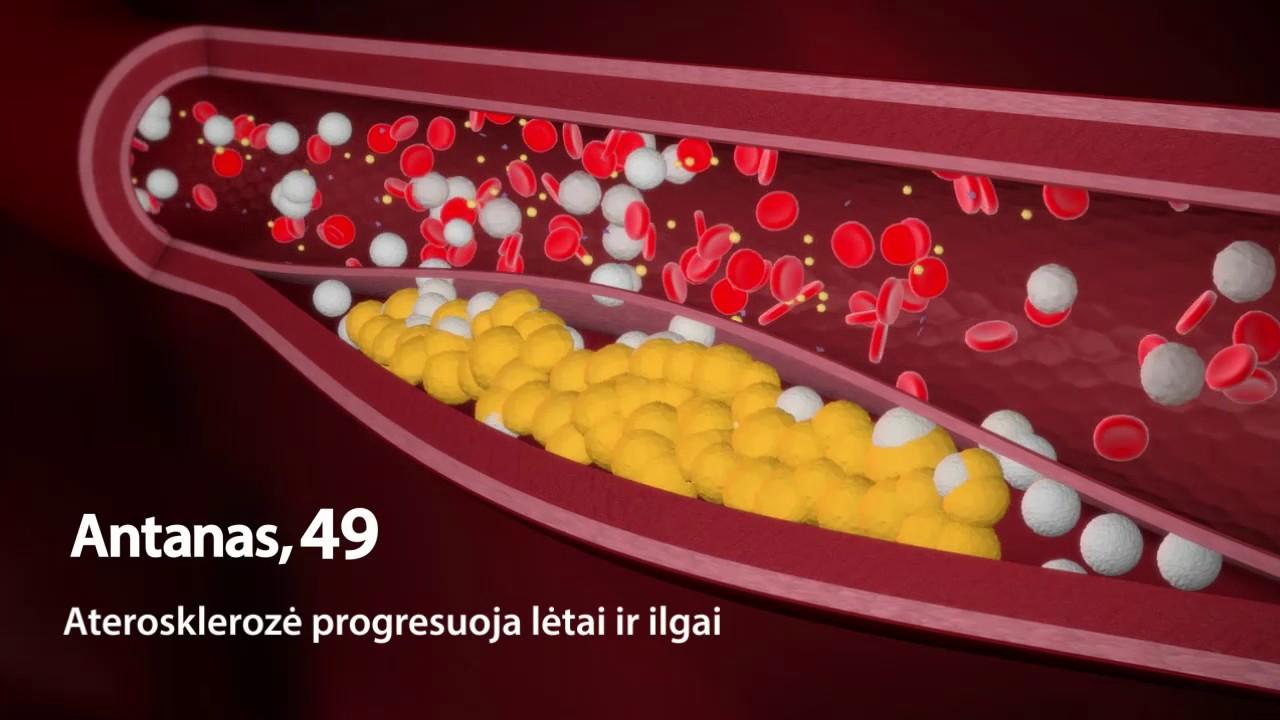 Kas sukelia hipertenziją Naujausia informacija)