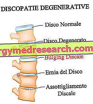 diskai nuo hipertenzijos