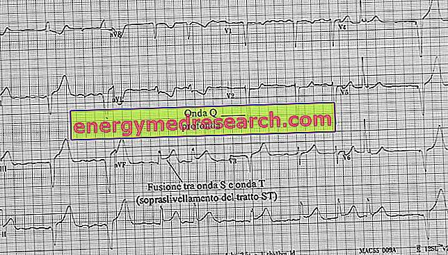 greitai veikiantys vaistai nuo hipertenzijos hipertenzijos iš tinktūrų receptas