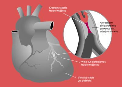 Gydytojas kardiologas: miokardo infarkto aukos – vis jaunesni vyrai