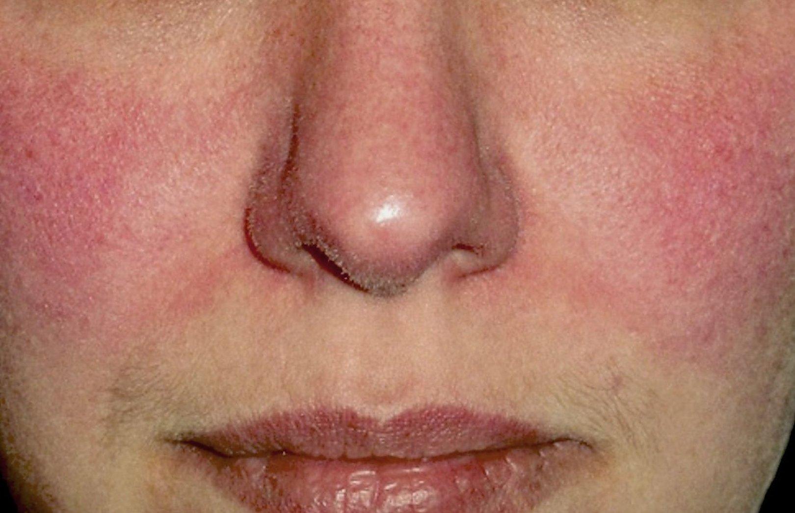 veido odos paraudimas ir hipertenzija