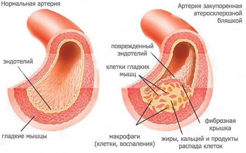 hipertenzijos sulčių gydymas