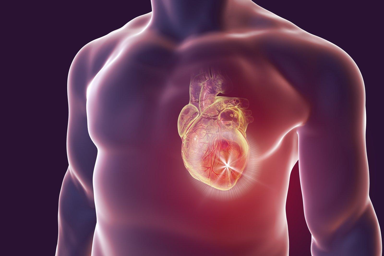 su hipertenzija, širdies kolitu nauji duomenys apie gydymą hipertenzija
