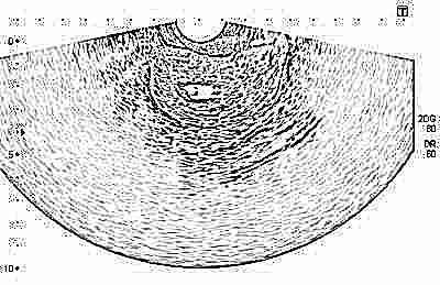 ultragarsas hipertenzijai nustatyti)