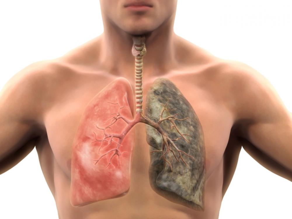 Kaip įveikti bronchitą?