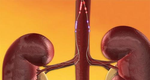 hipertenzija perduodama