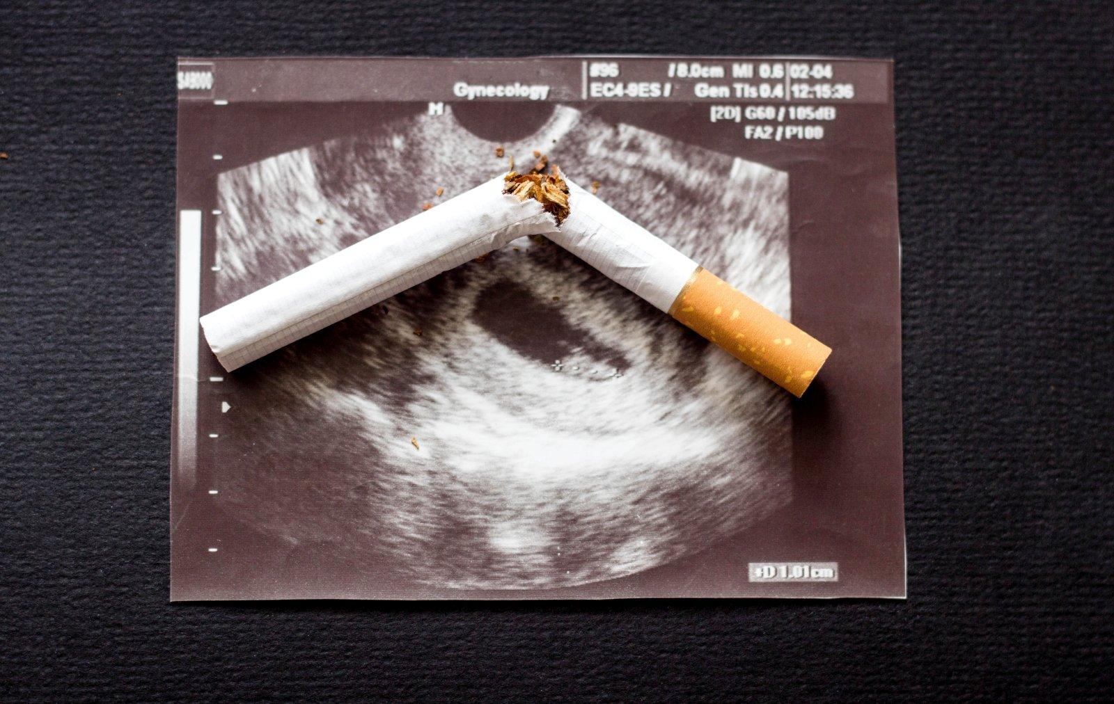 hipertenzija ir rūkymas moterims)