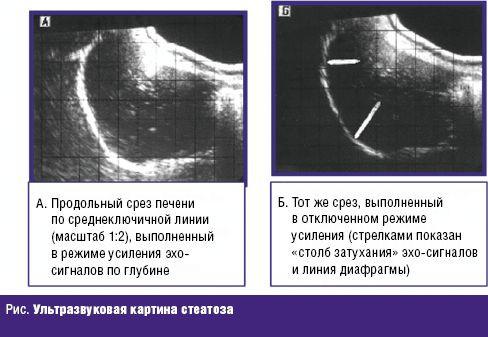 ultragarsas hipertenzijai nustatyti