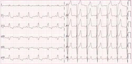 pritūpimas hipertenzijai gydyti