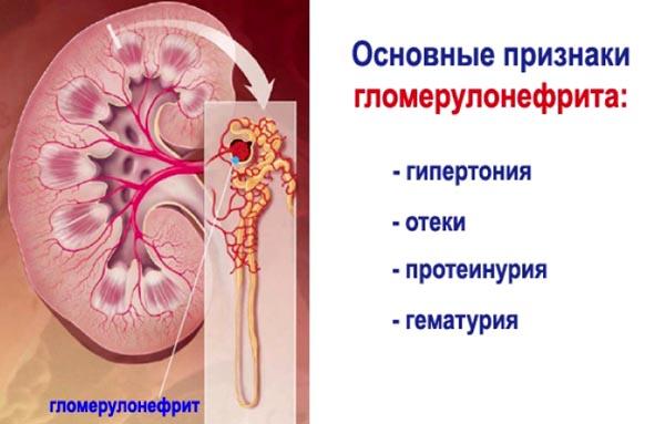 ortosifono hipertenzija