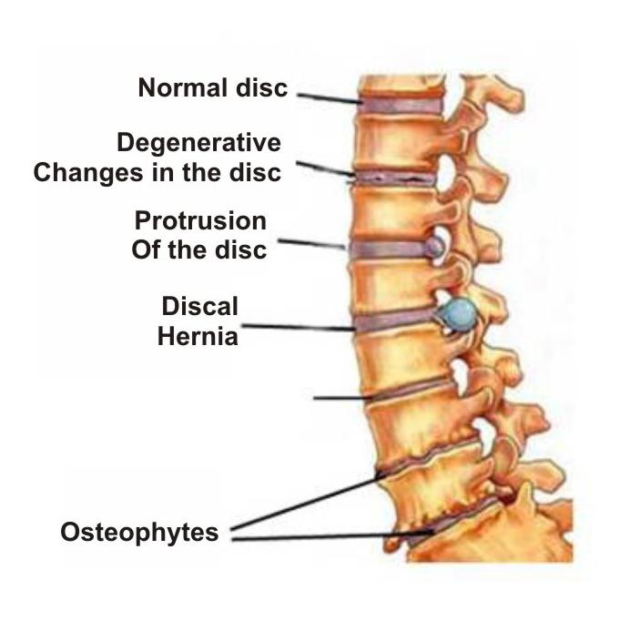 Osteochondrozė. Kaip atpažinti sudėtingos ligos simptomus? – vanagaite.lt