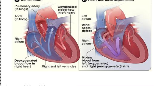 asd 2 esant hipertenzijai)