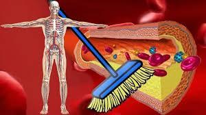 kaip išvalyti kraujagysles, sergančias hipertenzija