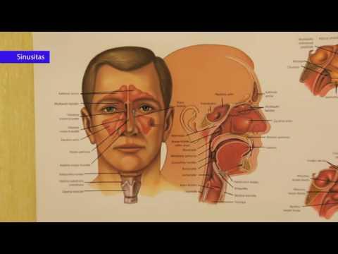 hipertenzijos pulsacija ausyse)