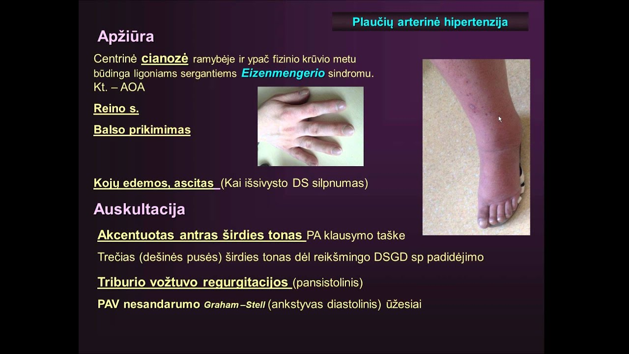 hipertenzijos gydymo perspektyvos)
