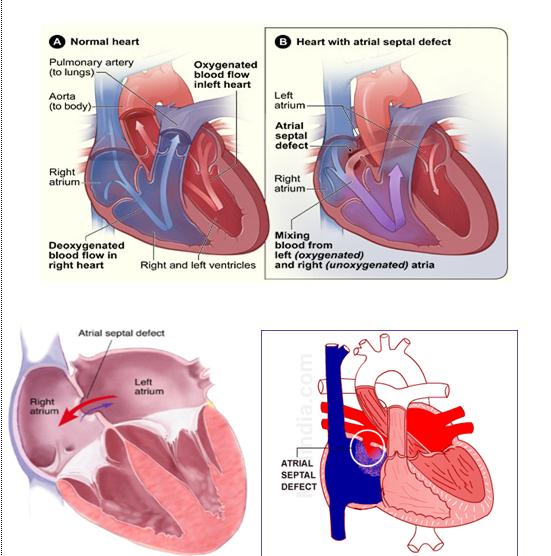 asd 2 esant hipertenzijai