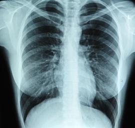 emfizema plaučių hipertenzija)