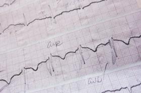 Kodėl reikia sunerimti, jei svaigsta galva ar skauda širdies plote?