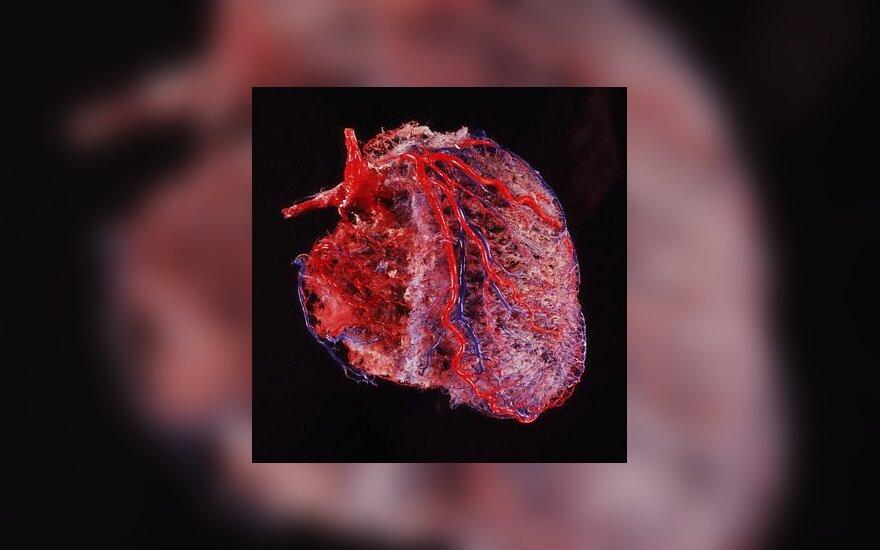 Plaučių hipertenzija