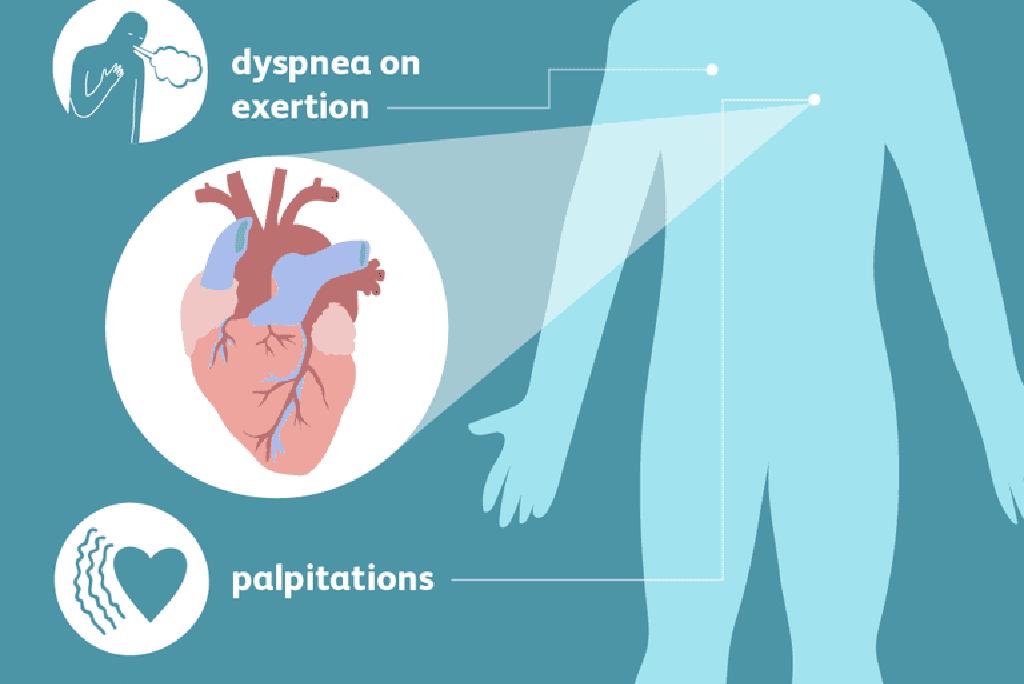 sveikatos širdies nepakankamumo simptomai